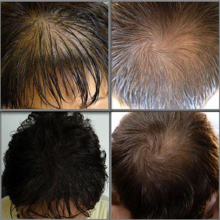 Thuốc Mọc Tóc Nhanh Và Trị Hói Hair by Revitalash