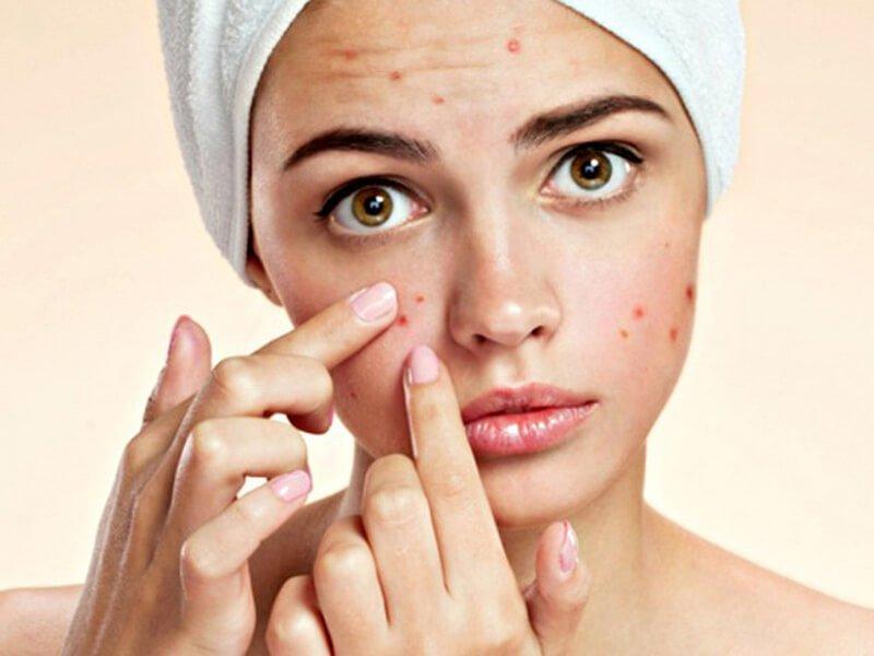 Gel rửa mặt Dr Spiller Herbal Cleasing cho da dầu mụn