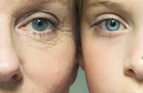 mặt nạ xóa nhăn vùng mắt Quanis Dermafiller