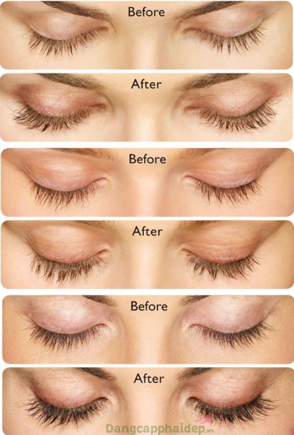 Trước và sau khi sử dụng serum dưỡng mi Revitalash Advanced Eyelash.