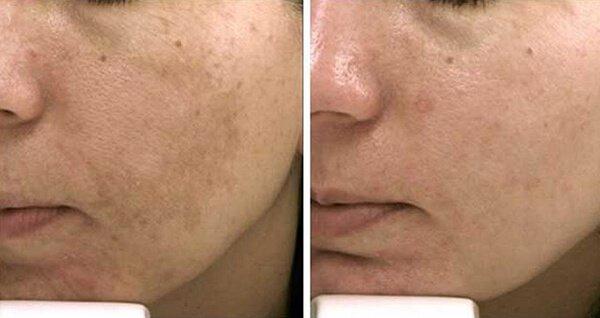 Kem trị thâm nám dưỡng trắng da Dr Spiller De Pigmentor Cream