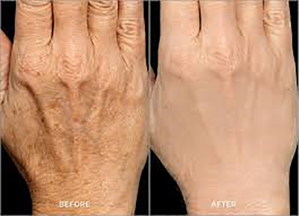 Kem dưỡng tay Dr.Spiller De Pigmentor Hand Cream 75 ml