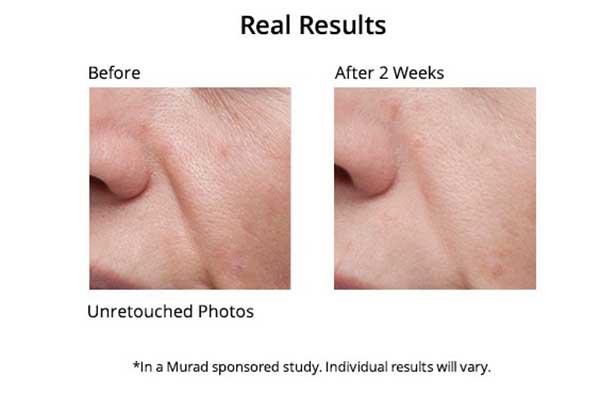 Serum Murad Intensive Age Diffusing Serum Pro
