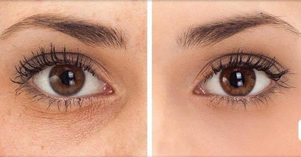 Dermalogica Intensive Eye Repair