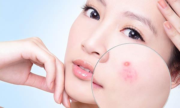 Dung dịch sát khuẩn, làm sạch da Image Skincare I Peel Degreasing Prep Solution
