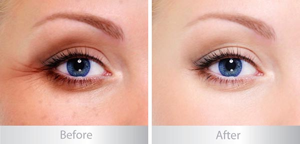 Image Ageless Total Eye Lift Crème