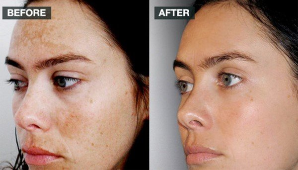 Image MD Reconstructive Lightening Crème