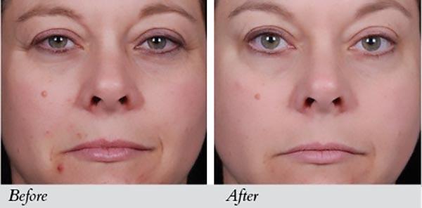 Image Skincare I Peel Lightening Lift