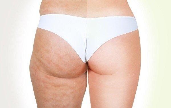 Kem săn chắc da toàn thân Image Skincare Body Spa Cell.U.Lift Firming Body Crème