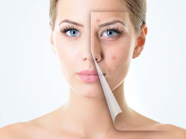 Kem trẻ hóa và làm mờ thâm mụn Image Skincare Total Retinol-A Crème