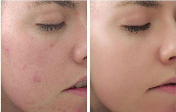 Sữa rửa mặt dạng cát giảm mụn Image Clear Cell Medicated Acne Scrub