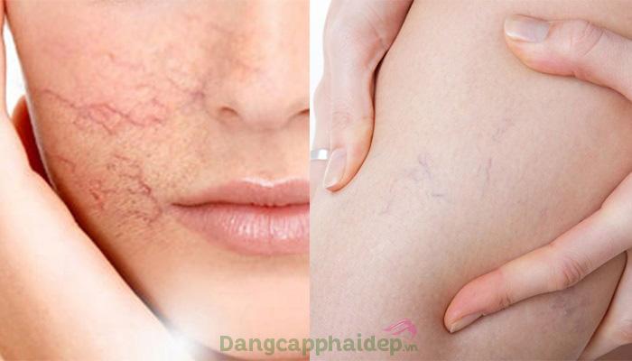 Giãn mao mạch dưới da thường xuất hiện ở mặt, vùng đùi, sau cẳng chân...