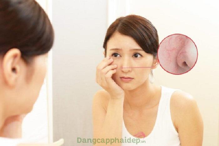 Rối loạn nội tiết tố là một trong những yếu tố tác động đến giãn mao mạch da mặt