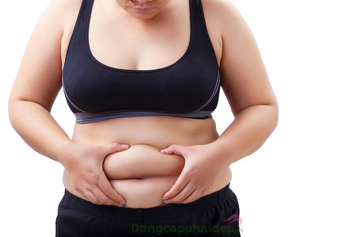 Giãn mao mạch dưới da vì tăng cân, béo phì