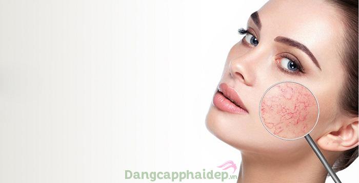 Giãn mao mạch gây mất thẩm mỹ cho làn da