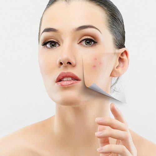 Kem trị mụn, chống lão hóa da Obagi Tretinoin Cream 0.05%
