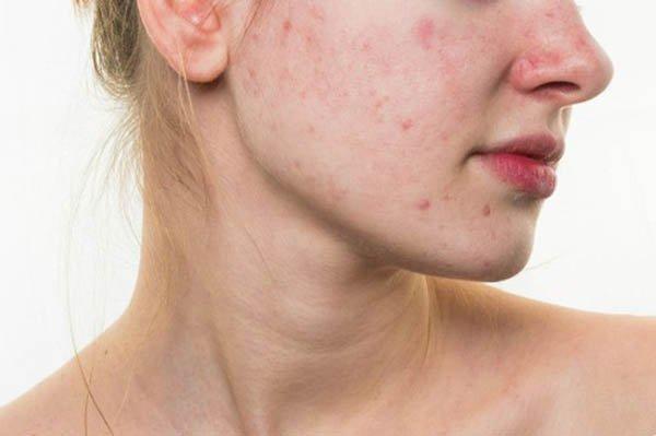 Kem trị mụn phục hồi da Obagi Tretinoin Cream 0,1%