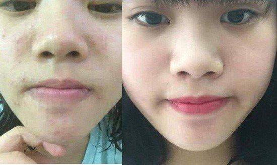 Khăn giấy điều trị mụn Suzanobagimd Acne Cleansing Wipes