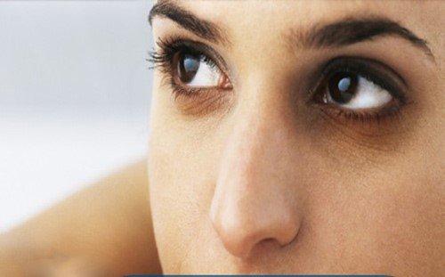 cách trị thâm quầng mắt