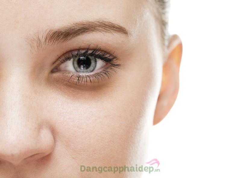 Cách làm hết thâm quầng mắt sau 1 đêm
