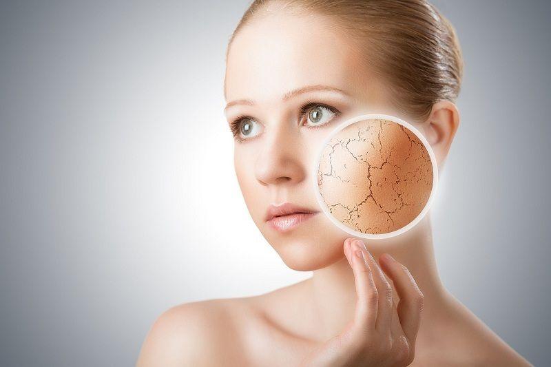 Kem dưỡng ẩm dành cho da khô kích ứng Dr Spiller Sanvita Cream 50 ml