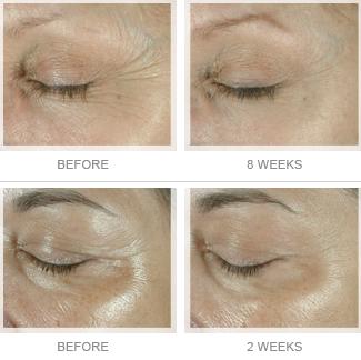Serum chống nhăn, thâm quầng vùng da mắt Elastiderm Eye Serum 14ml bán chạy số 1 tại Hoa Kỳ