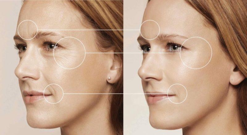 Tinh chất làm mờ nếp nhăn và chống lão hóa da cao cấp Maria Galland Luxury Skin Serum 1010