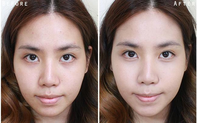 Kem dưỡng da trẻ hóa, ngừa mụn Obagi 360 Retinol 0.5 28g– Bảo vệ làn da khỏe đẹp, trắng mịn không tỳ vết
