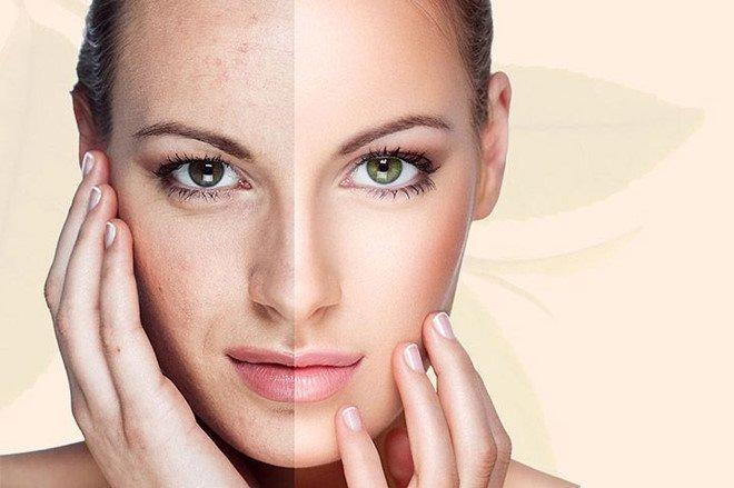 Kem dưỡng đêm trị mụn chống lão hóa da Babor Pure Purify Anti - Aging Cream 50ml – Đức