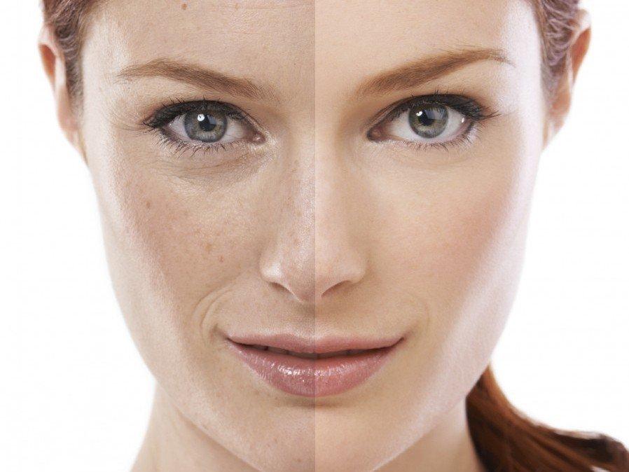 Kem dưỡng ẩm ngày đêm cho da mất nước Babor Skinovage CS Anti-Stress Cream
