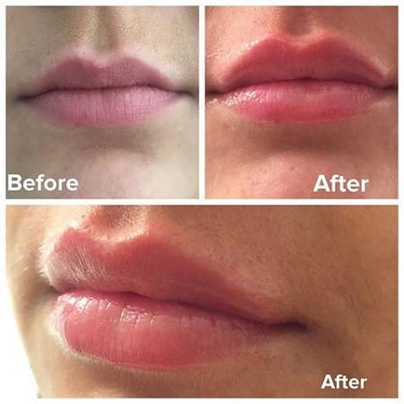 Son dưỡng môi chiết xuất thiên nhiên Image Skincare Balancing Lip Enhancement Complex 7g