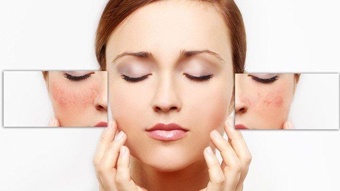 Mesoestetic Anti-stress Face Mask 100ml - Mặt nạ làm dịu da, giảm kích ứng cấp tốc bán chạy số 1 tại Tây Ban Nha