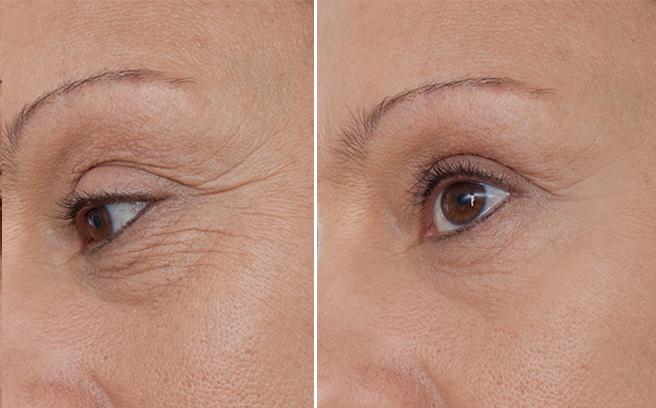 Mesoestetic Collagen 360 Eye Contour 15ml - Tinh chất collagen xóa nếp nhăn, làm săn chắc vùng mắt cao cấp xuất xứ Tây Ban Nha