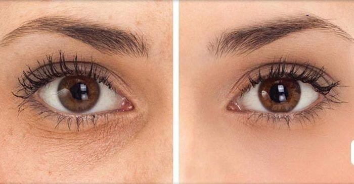 Kem dưỡng da vùng mắt cao cấp Mesoestetic Radiance DNA Eye Contour 15ml – Tây Ban Nha