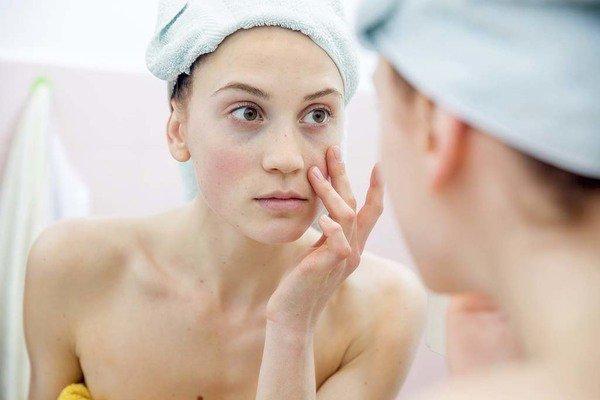 Vào mùa đông, làn da nhạy cảm thì phải chăm sóc như thế nào mới đúng?