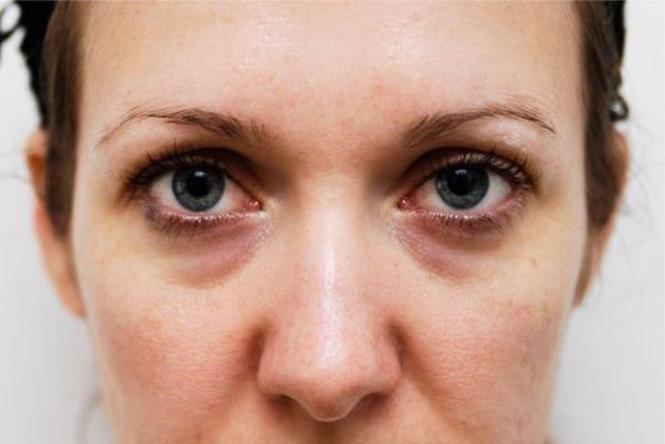 Mesoestetic Engergy C Eye Contour 15ml – Kem đặc trị thâm quầng mắt, xóa nhăn cao cấp được ưa chuộng hàng đầu tại Tây Ban Nha