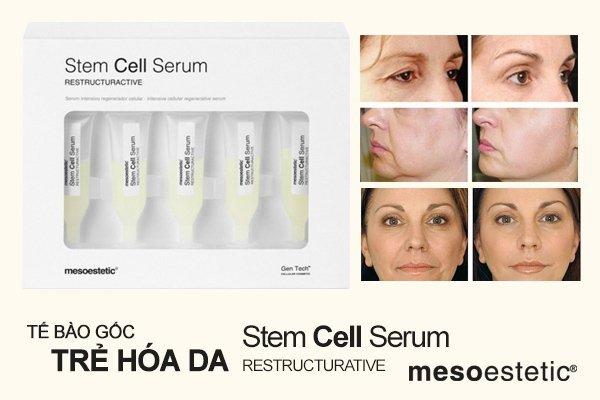 Serum tế bào gốc trẻ hóa da Mesoestetic Stem Cell Serum Restructurative (5 tuýp x 3ml) – Tây Ban Nha