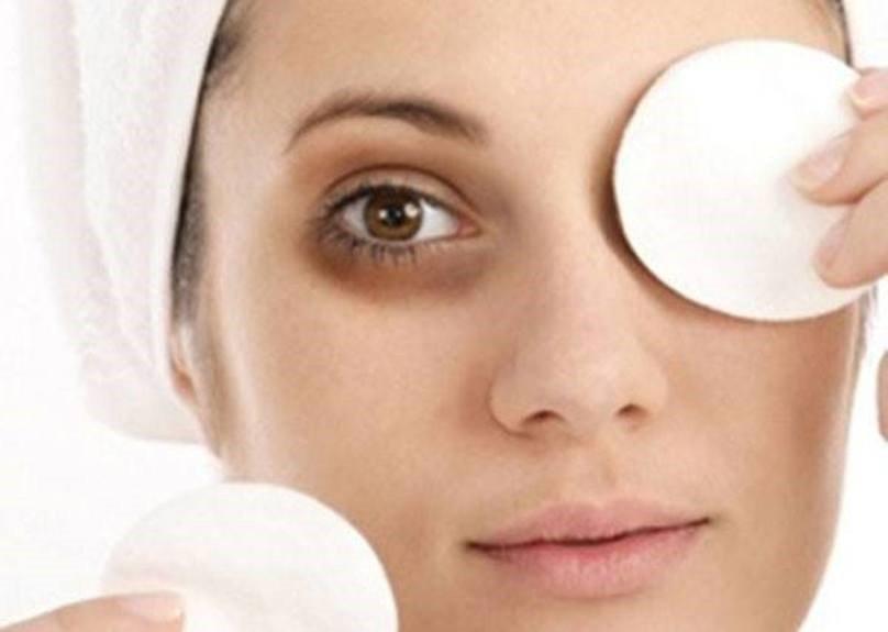 """9 cách """"siêu dễ"""" giúp trị thâm quầng mắt, bọng mắt cực nhanh"""