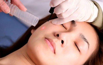 Đâu mới thật sự là phương pháp trị nám da phù hợp dành cho bạn?