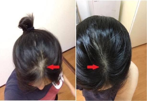 [Góc chia sẻ] - Hành trình lấy lại tự tin của cô gái 9x bị rụng tóc, hói đầu
