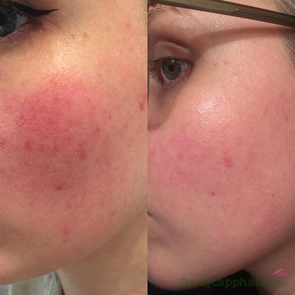 Da sau điều trị lăn kim, laser...rất mỏng yếu, dễ kích ứng, ửng đỏ, thậm chí là viêm da...