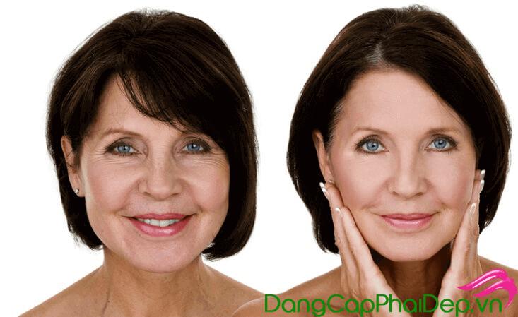 Collagen Nhật Bản dạng thạch có tốt không? Đâu là thạch collagen chính hãng đáng tin cậy?