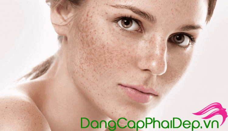 Collagen Nhật Bản trị tàn nhang