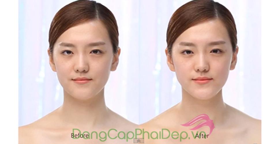 Trước và Sau khi massage