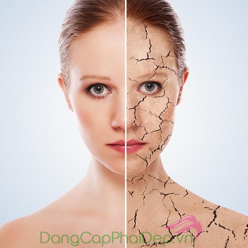 Da khô là một trong những dấu hiệu dễ nhận thấy của lão hóa da.