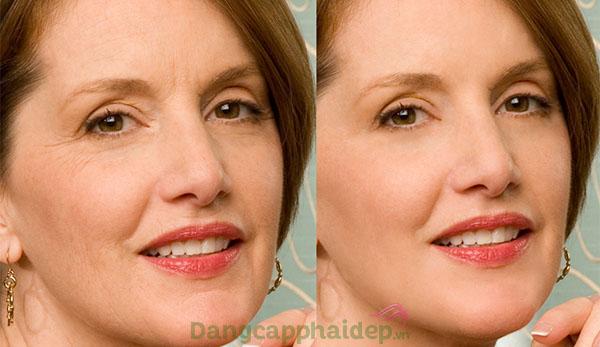 Làn da căng đầy, giảm nếp nhăn hiệu quả chỉ sau 4 - 8 tuần sử dụng kem chống lão hóa Q10 Phytocomplex Cream.