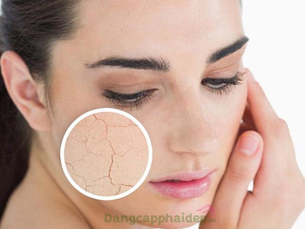 Làn da khô ráp, bong tróc hay sần sùi do mất nước, thiếu ẩm.