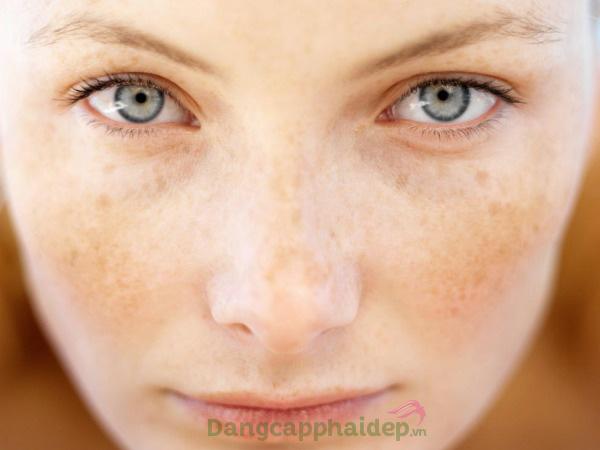 Do nhiều yếu tố tác động khiến làn da xuất hiện nám sạm, tàn nhang...