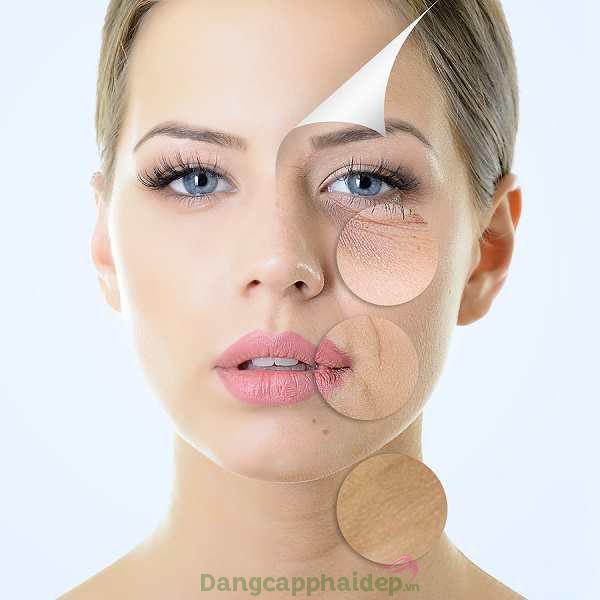Thiếu hụt collagen khiến làn da chảy xệ, xuất hiện nếp nhăn...