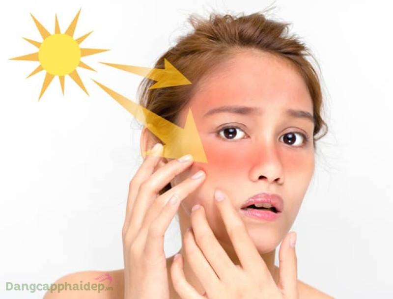 Ở nhà có nên dùng kem chống nắng
